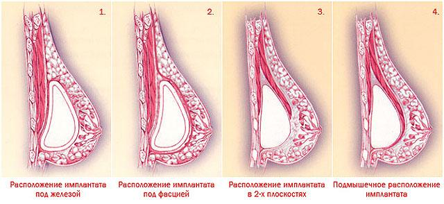 расположение имплантов