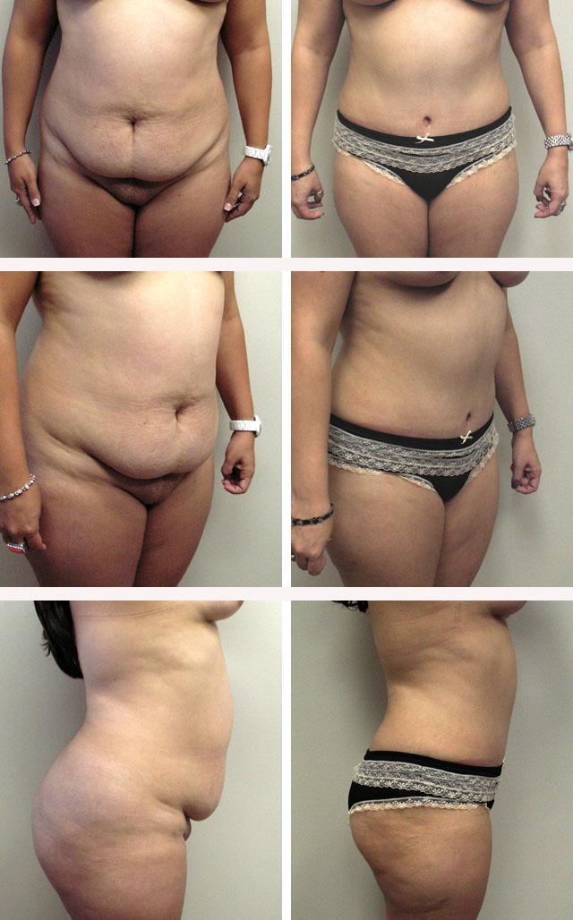фото до и после абдоминопластики