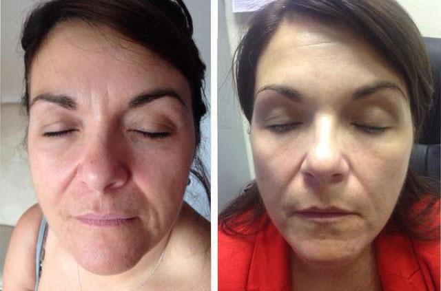 фото до и после мезоботокса
