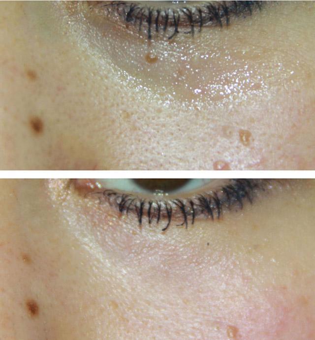 фото до и после лечения кератоза