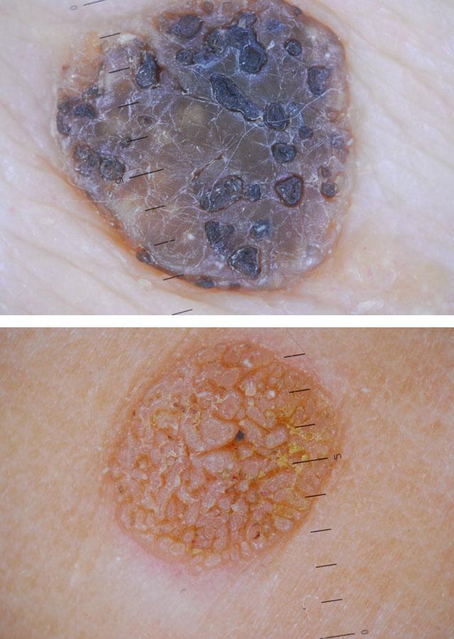 Кератоз кожи лица и его лечение