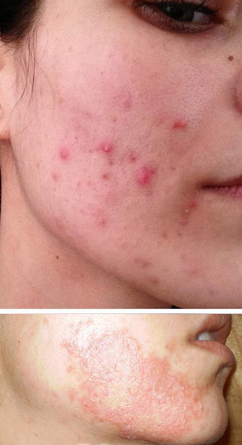Обострение угревой болезни (рис. 1) и герпетической инфекции (рис. 2) после проведения химического пилинга