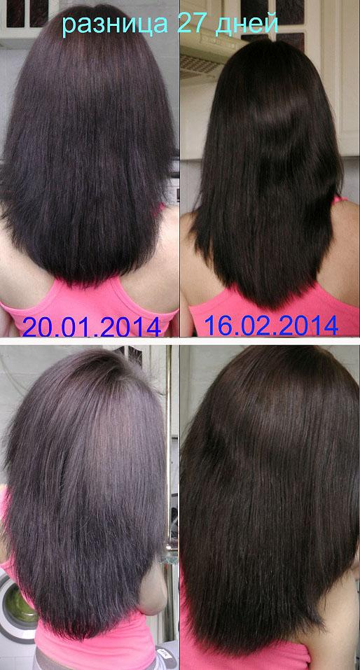 Эффект после 27-ми дневного курса дарсонвализации кожи головы