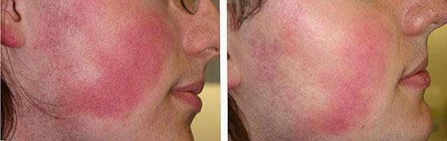 фото до и после лазерной терапии