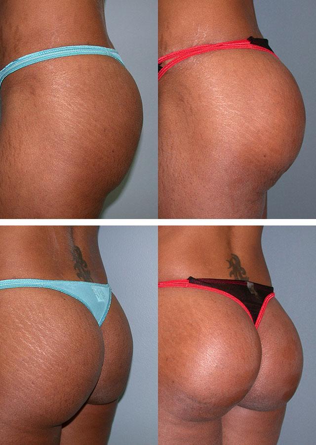 пластические операции женских задниц