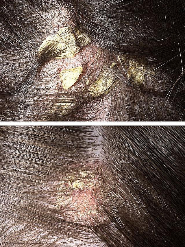 Фото себорейного дерматита волосистой части головы