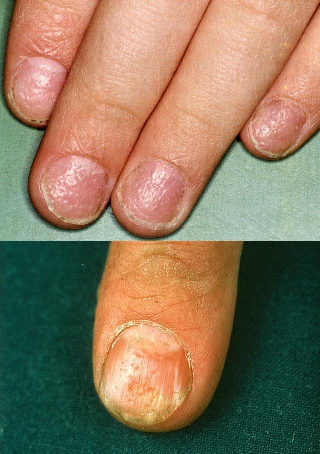 Наперсточная деформация ногтя