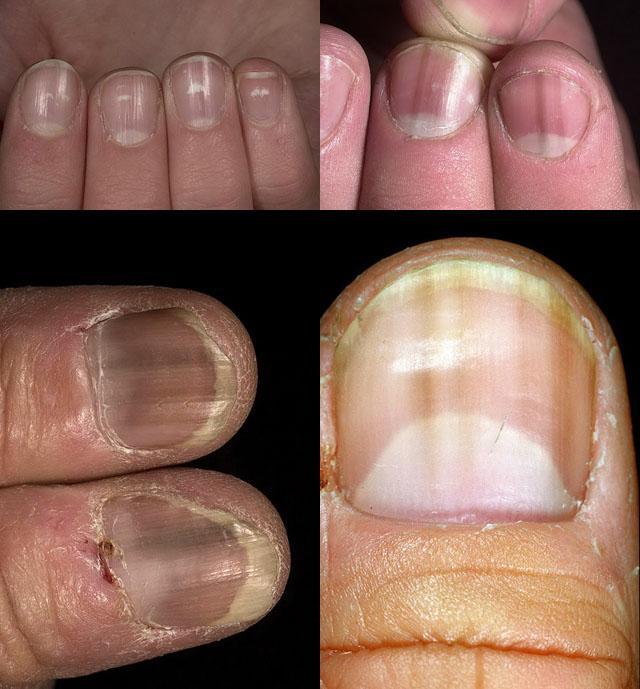лечение дистрофии ногтей