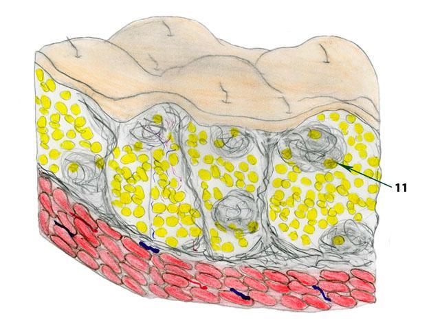 3-4 стадии целлюлита