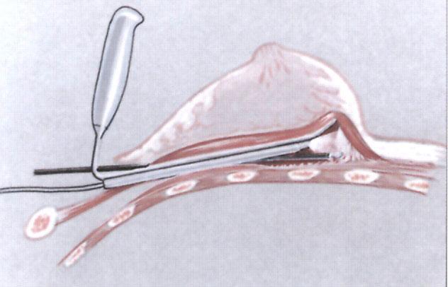 Формирование кармана для установки имплантата при помощи эндоскопа