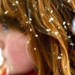Перхоть – не зимние снежинки на плечах