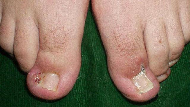 Клиновидная резекция вросшего ногтя. 1. До операции 2. После заживления