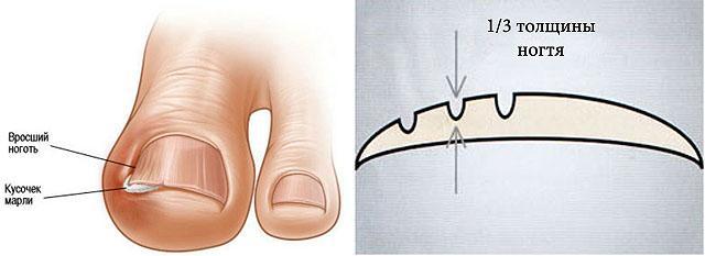 Коррекция вросшего ногтя в домашних условиях