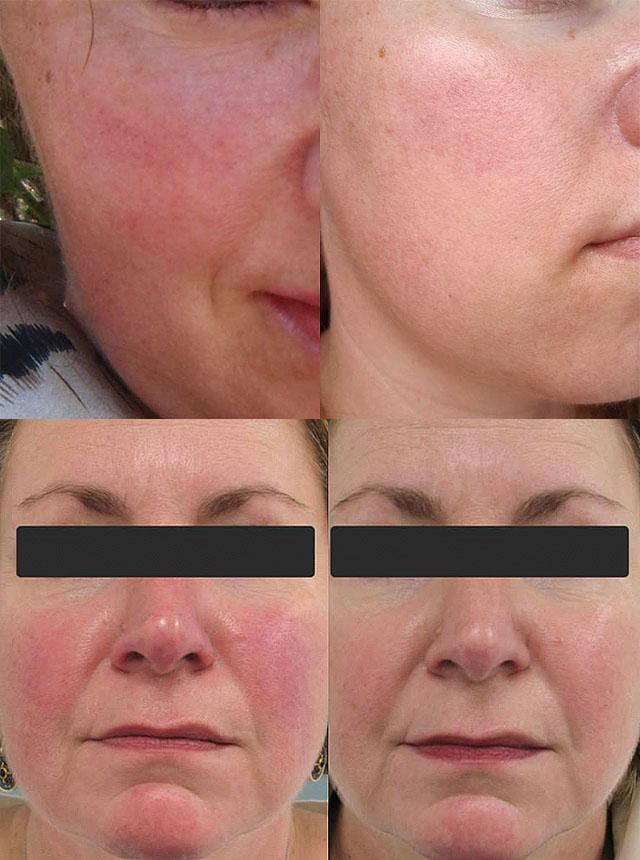 Лечение купероза косметическими средствами