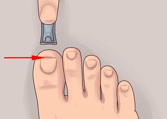 профилактика вросшего ногтя