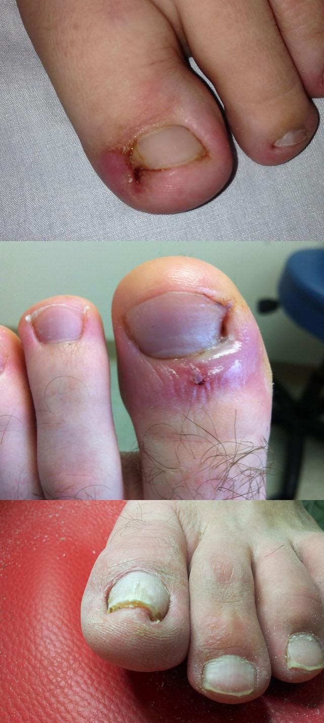 Так выглядит вросший ноготь на большом пальце ноги