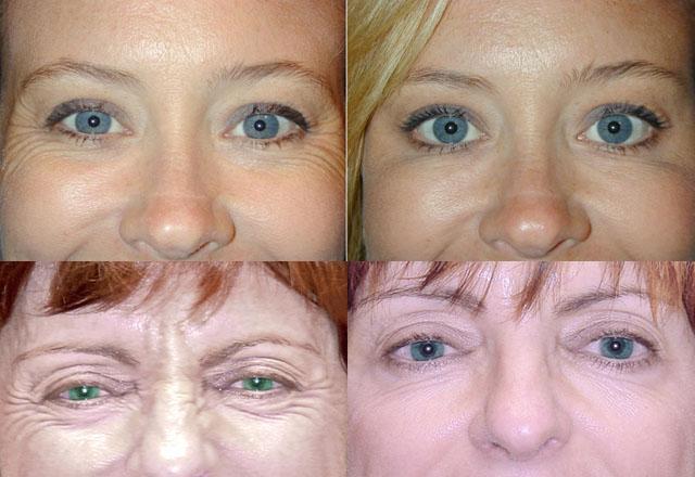 Эффективные процедуры для кожи вокруг глаз thumbnail
