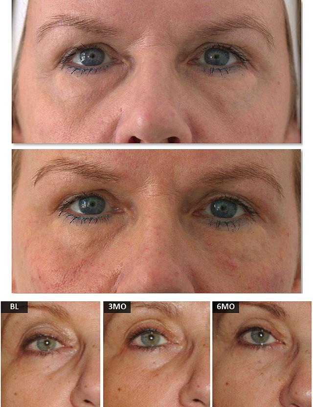 как омолодить кожу вокруг глаз