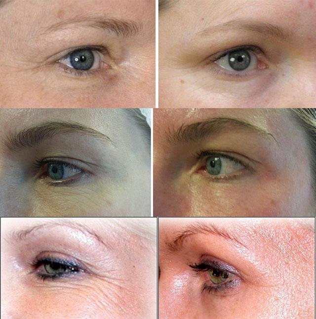 Косметологические процедуры для кожи вокруг глаз