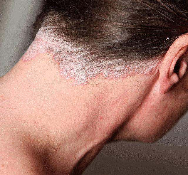 Псориаз волосистой части головы : причины, симптомы, диагностика, лечение
