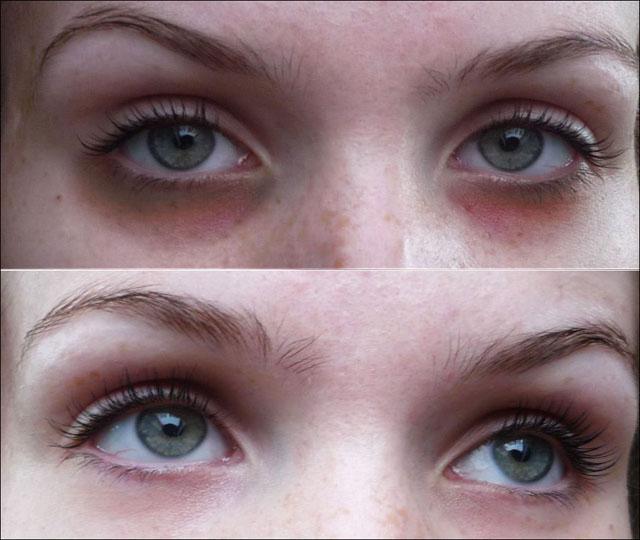 Темные круги под глазами – причины появления и методы лечения