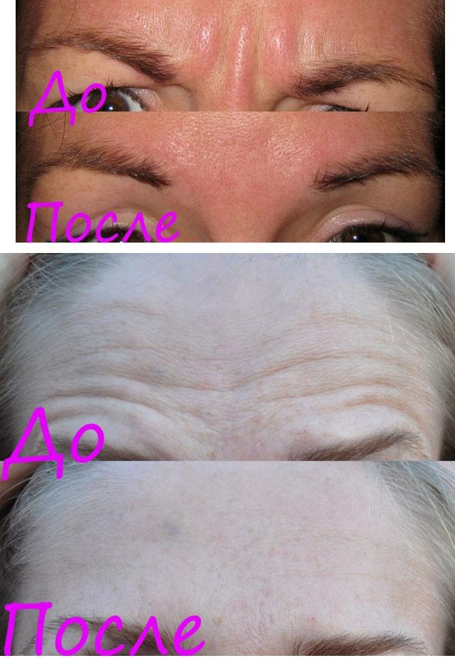 лантокс фото до и после