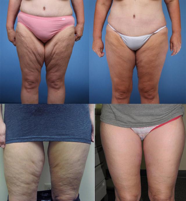 Причины похудения ног у женщины