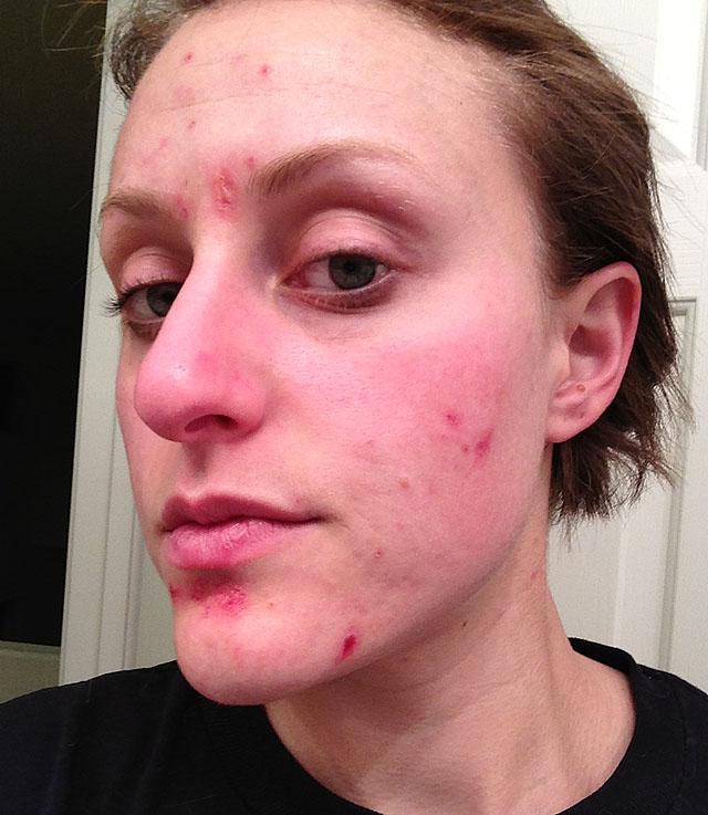 угревая болезнь на лице