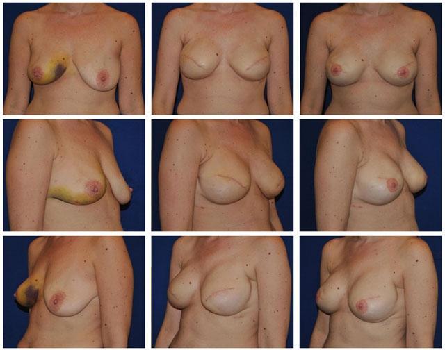 реконструкция железы аутотрансплантатом