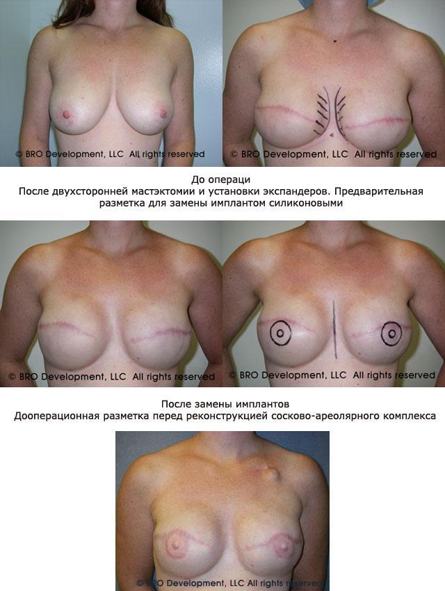 реконструкция груди фото