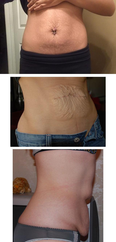 Так выглядит живот после родов и стремительного похудения