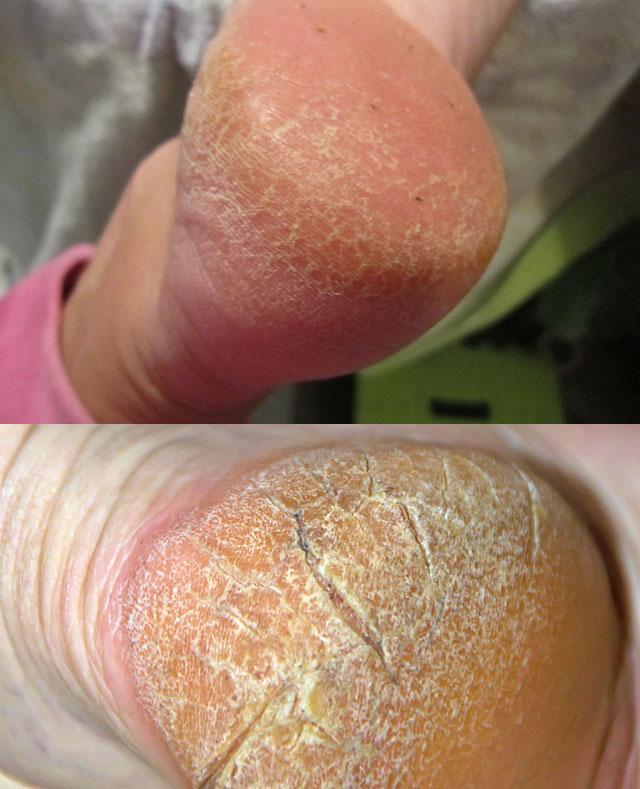 Как лечить трещины на пятках быстро