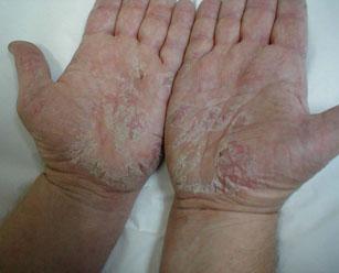 Дисгидротическая экзема на ногах
