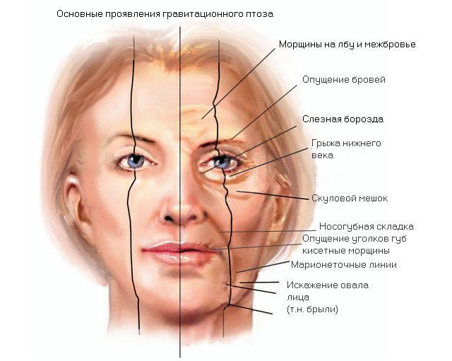 Проявления птоза тканей