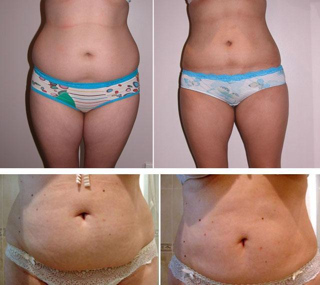 как убрать жир на животе у женщин