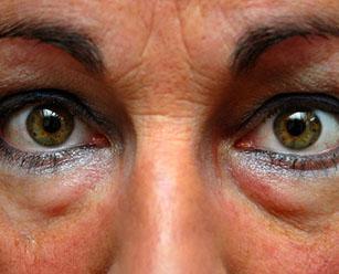 Как убрать грыжи под глазами удаление грыж верхнего нижнего века с помощью блефаропластики