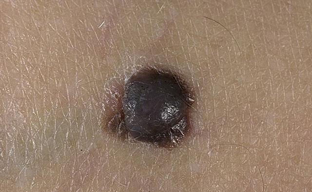 Узловая форма меланомы