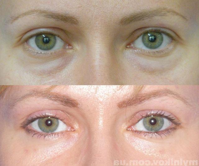 грыжи под глазами как убрать и можно ли избавиться без операции