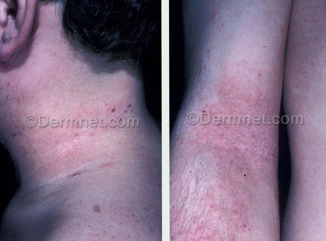 atopicheskij-dermatit-foto