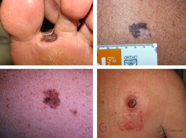 базальноклеточный рак кожи лечение