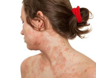 Как лечить микробную экзему симптомы и причины заболевания
