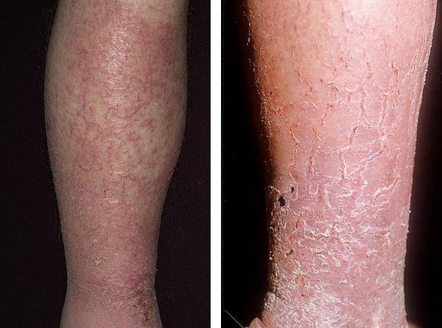 Сухая экзема на руках и ногах: 8 фото, лечение, причины, симптомы, профилактика