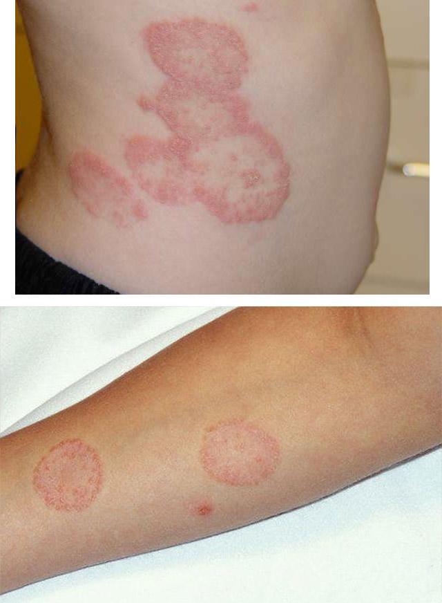 Очаги поражения гладкой кожи