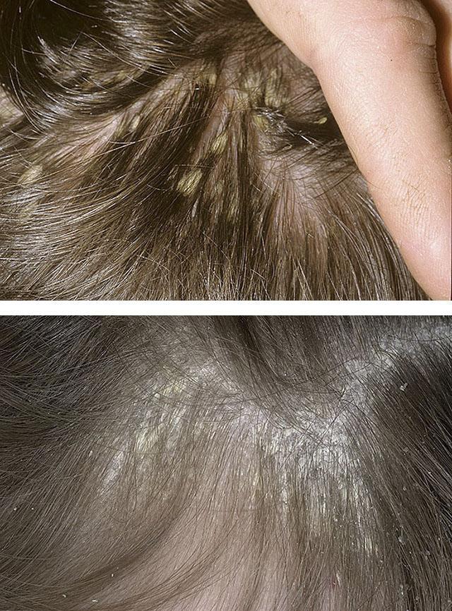 Псориаз волосистой части головы фото псориаз головы