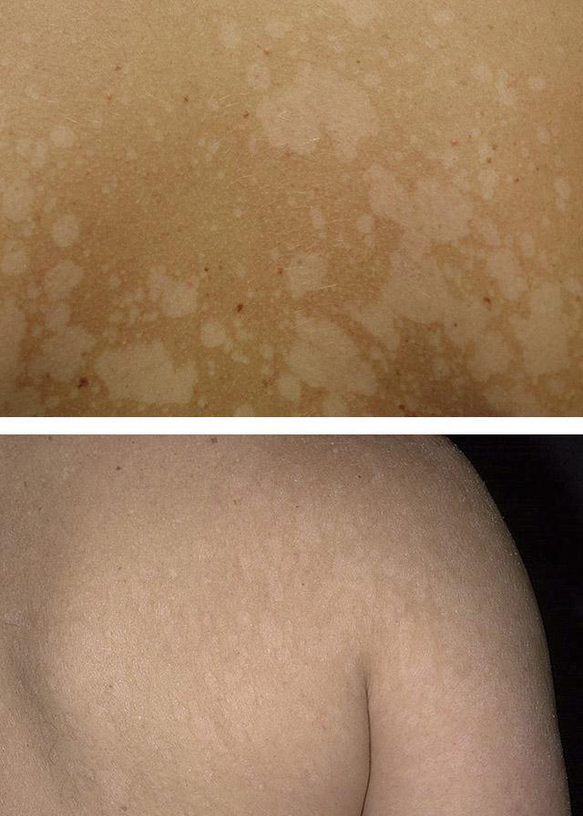 Отрубевидный лишай лечение при грудном вскармливании