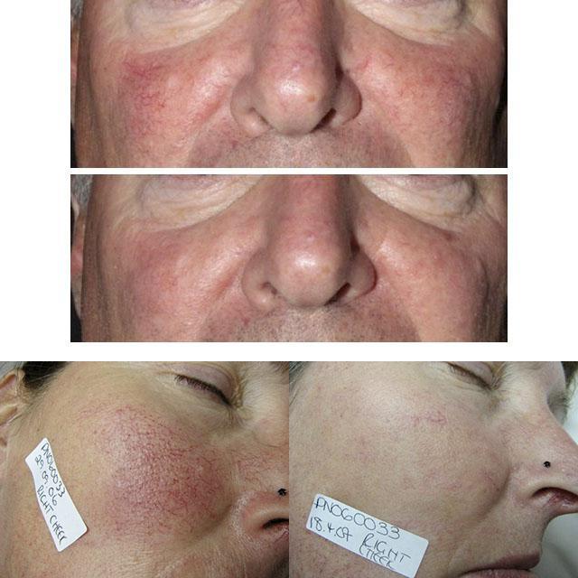 лазерная коррекция купероза на лице