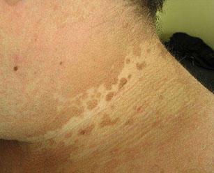 Цветной лишай у человека симптомы лечение фото на коже в домашних условиях