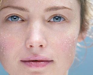 Чувствительная кожа лица: проявления и уход