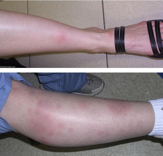 Узловатая эритема на ногах: лечение у детей, взрослых и беременных, причины острой и хронической формы, питание, народные средства
