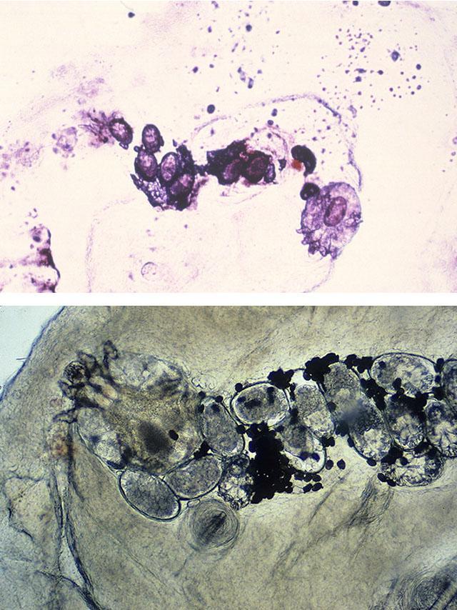1. 2. Изображение чесоточного хода с несколькими яйцами и беременной самкой